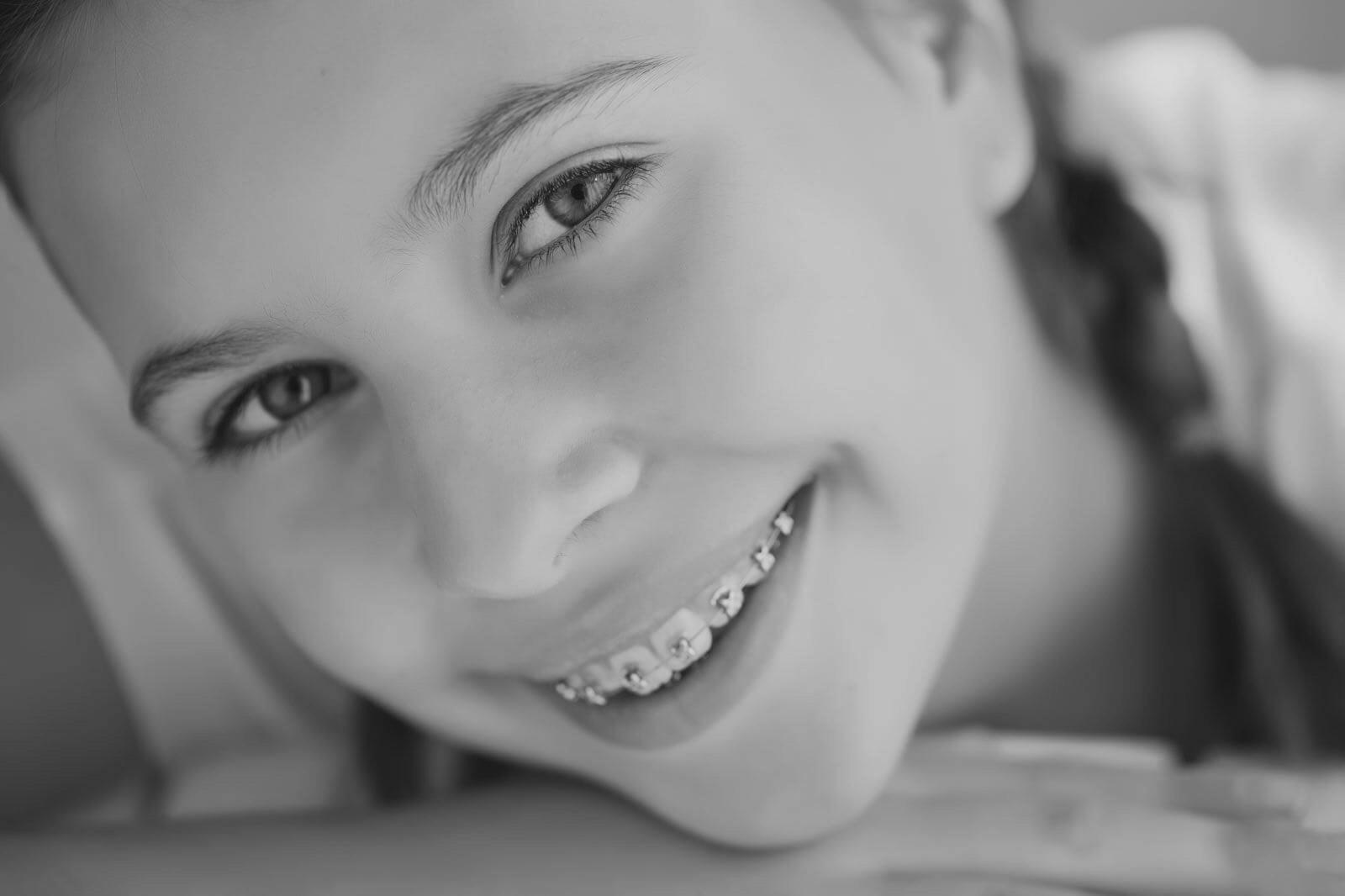 ortodoncia-adolescente-niña-brackets-barcelona