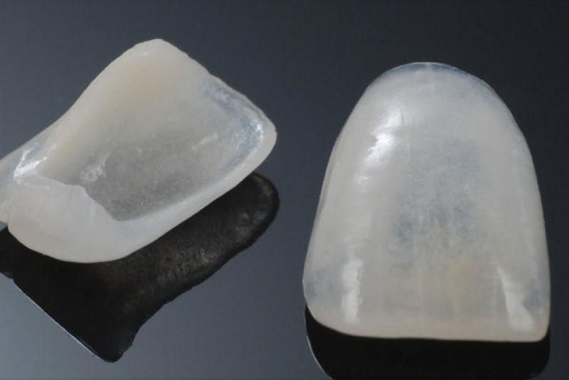 carillas-dentales-de-porcelana