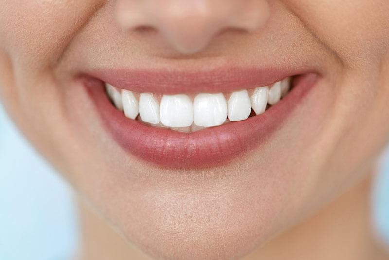 blanqueamiento-dental-en-barcelona