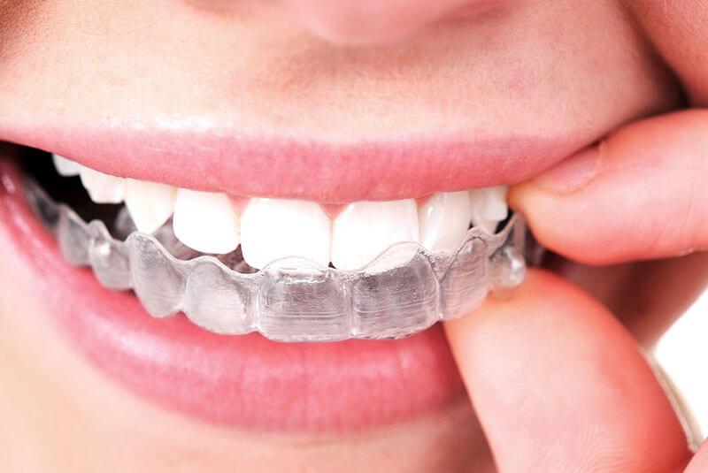 ortodoncia-invisible-invisalign-en-barcelona-tratamientos-clinica-dental-vas-ok