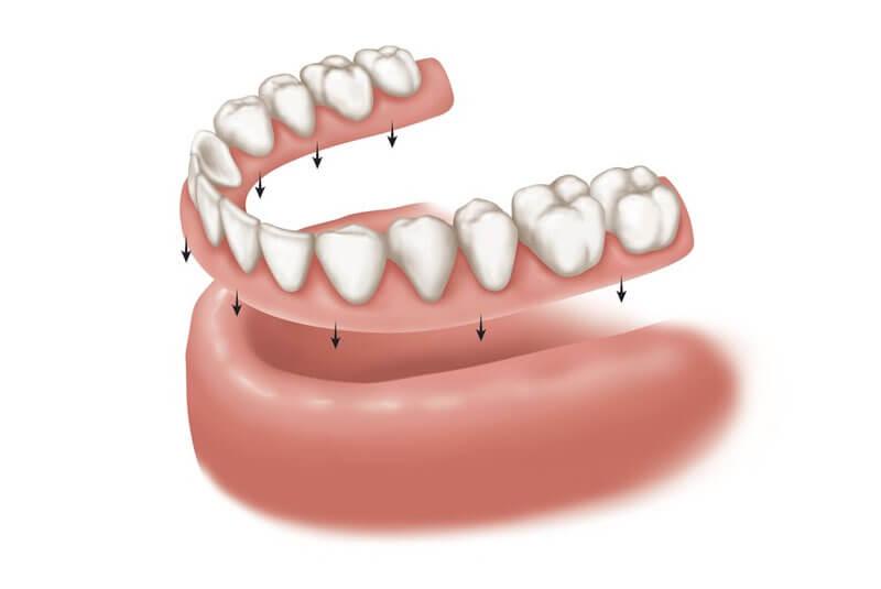 prótesis-dental-completa-o-dentadura-postiza-en-barcelona