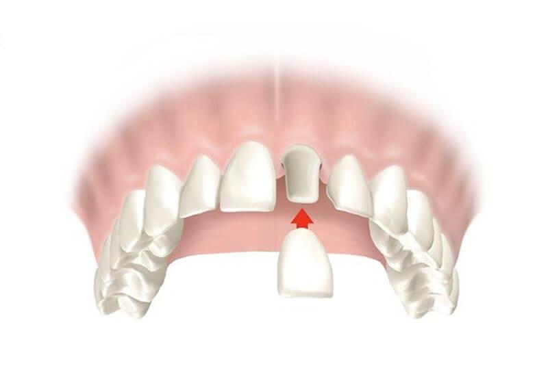 prótesis-fija-coronas-o-fundas-dentales-en-barcelona