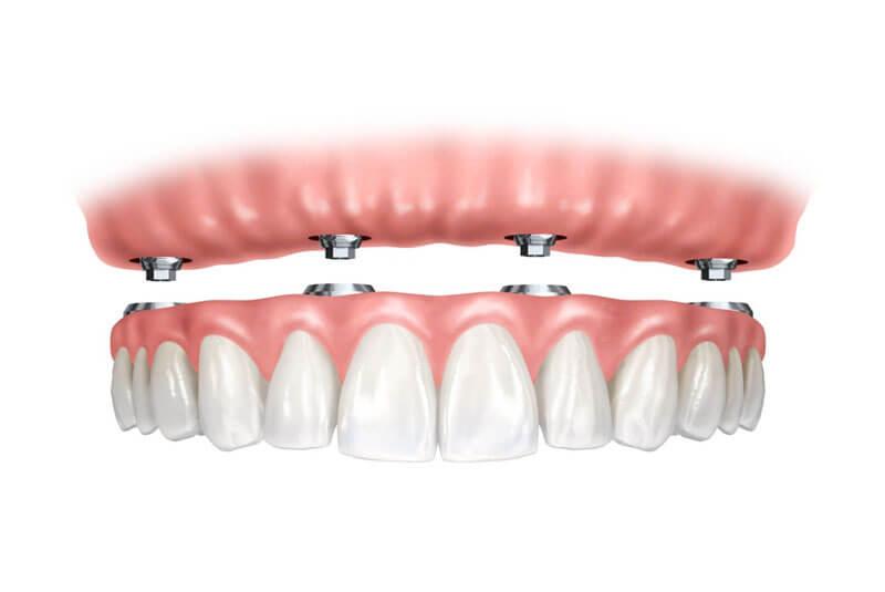 prótesis-híbridas-sobre-implantes-falta-de-dientes-en-barcelona