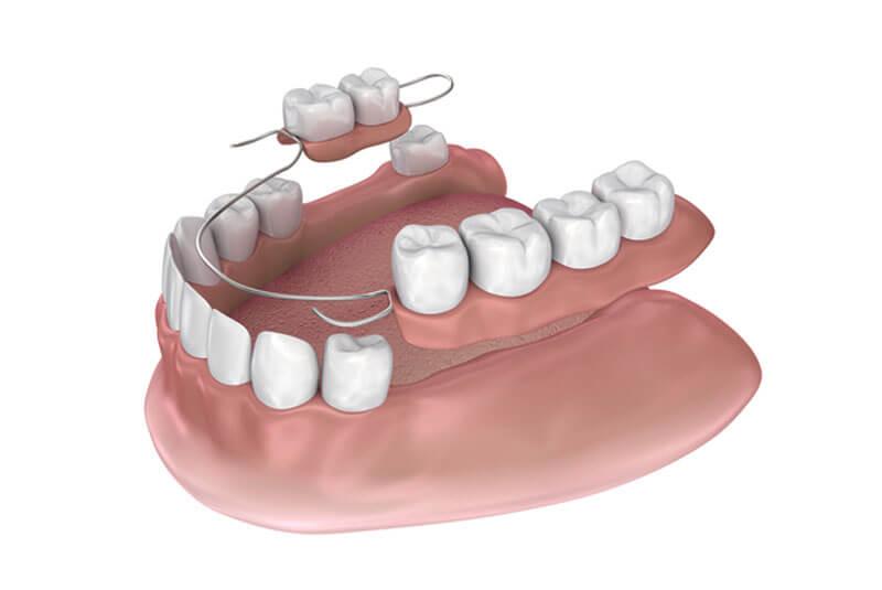 prótesis-parcial-removible-o-esqueléticos-clínica-dental-vas-en-barcelona