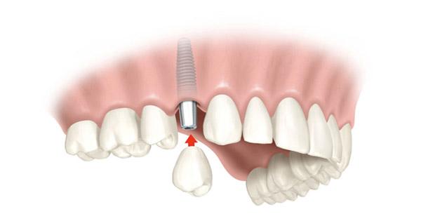 corona-sobre-implante-barcelona