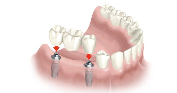 puente-sobre-dos-implantes-barcelona