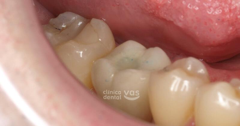 corona-ceramica-sobre-implante-despues