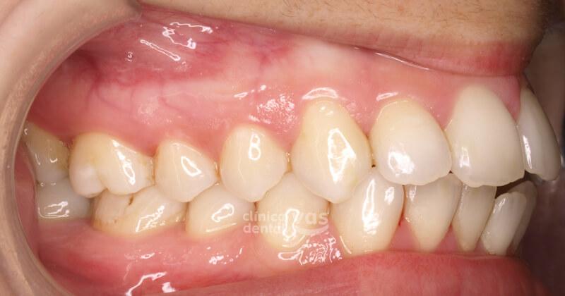 009-ortodoncia-clase-2-antes