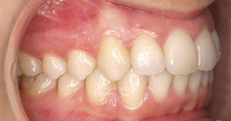 009-ortodoncia-clase-2-despues