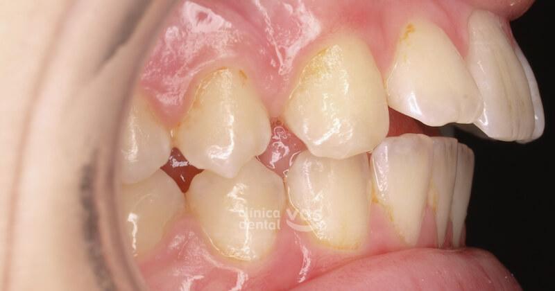 010-ortodoncia-clase-2-01-antes