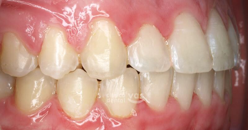 010-ortodoncia-clase-2-01-despues