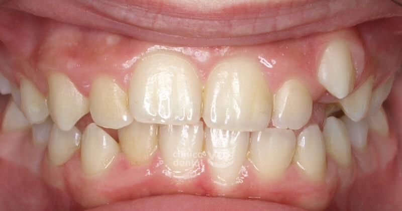 011-caso-ortodoncia-antes