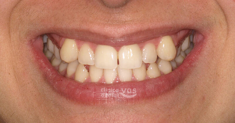 013-caso-ortodoncia-01-antes