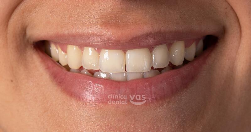 013-caso-ortodoncia-01-despues