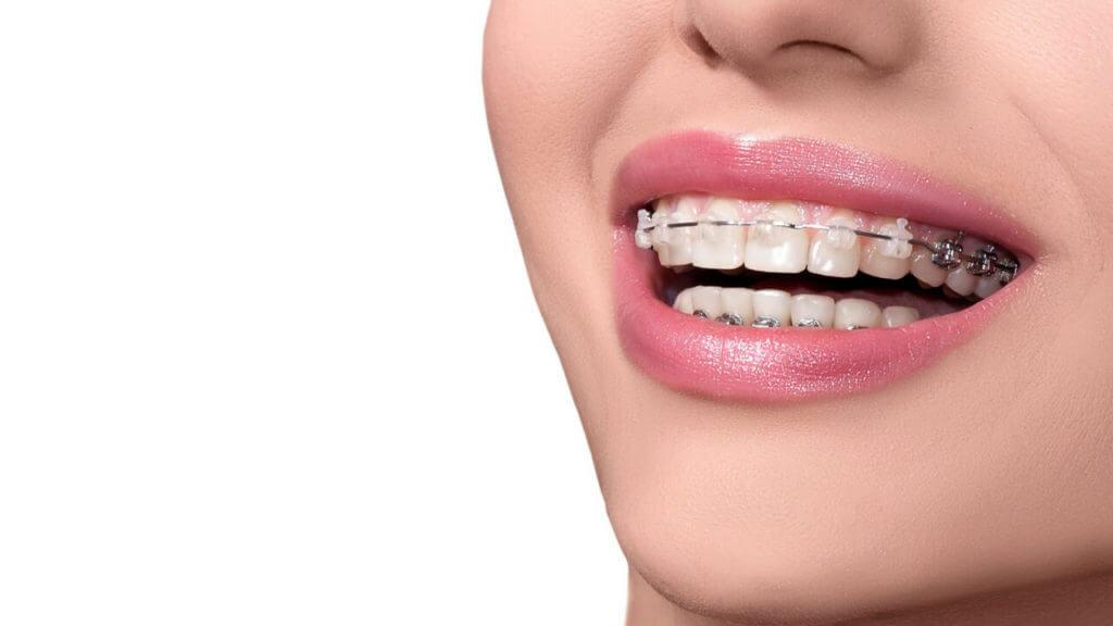 ortodoncia-fija-clinica-dental-barcelona