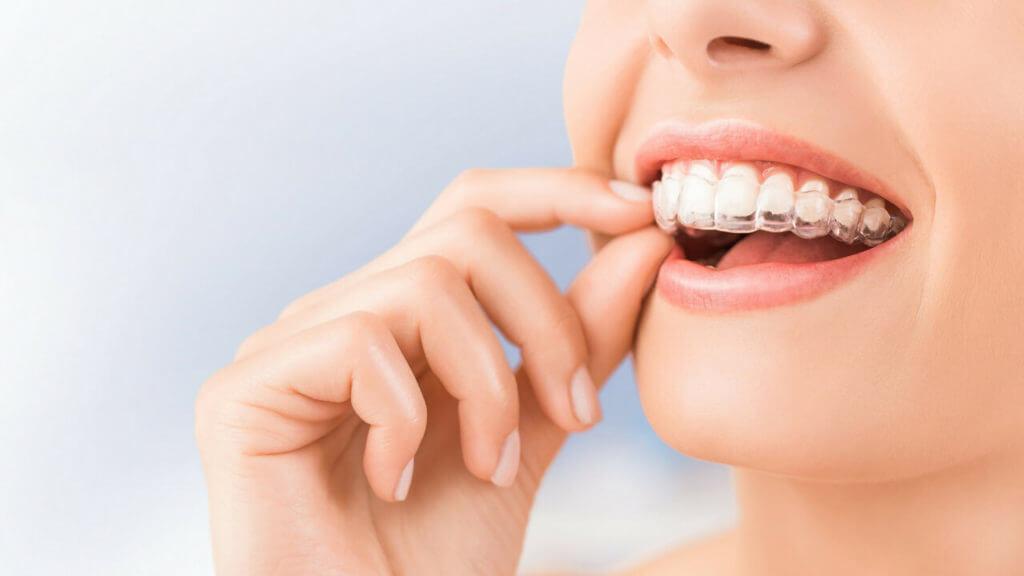 ortodoncia-removible-clinica-dental-barcelona