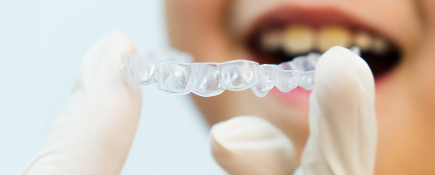 ortodoncia-invisible-para-niños-clinicavas