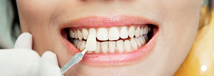 todo-sobre-las-carillas-dentales